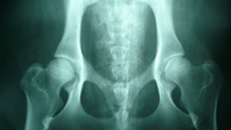 Canine Hip Dysplasia: An Overview
